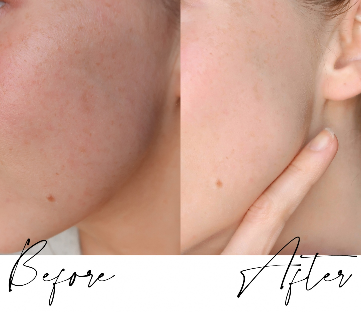 deminuage, nano pen, nanochip, microneedling at home device, reduce wrinkles, clear acne